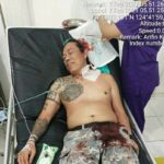 Berry Betrandus Ungkap Kronologi Dirinya Jadi Korban Kekerasan di Perkebunan Alason Mitra
